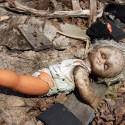 Remember Fukushima?  Children Thyroid Cancer 40 Times Normal