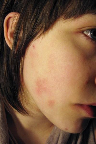 food sensitivity eczema