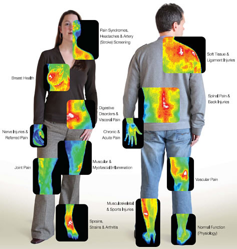 Thermography breast screening
