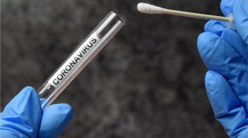291 personas murieron y 14.115 fueron reportadas con coronavirus en las últimas 24 horas