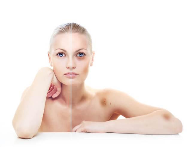 Почему легко появляются синяки на коже: 9 тревожных причин