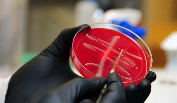 Staff-at-Walter-Reed-Army-Institute-of-Research-test-the-concerning-new-bacteria-carrying-the-mcr-1-antibiotic-resistance-gene-Walter-Reed-Army-Institute-of-Research