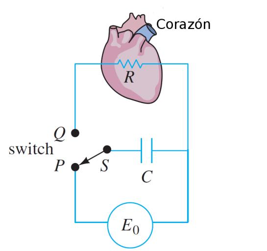 Sistema eléstrico representativo del marcapaso de Corazón