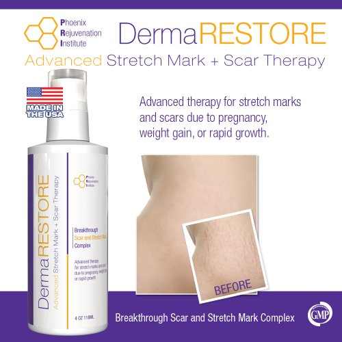 DermaRESTORE - The #1 Clinically Proven Stretch Mark and Scar Treatment - 4oz Cream