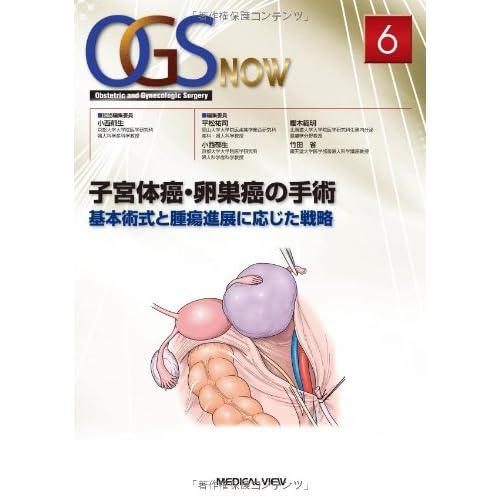 子宮体癌・卵巣癌の手術−基本術式と腫瘍進展に応じた戦略 (OGS NOW 6)