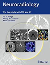 By Val M. Runge Neuroradiology: The Essentials with MR and CT (1st Frist Edition) [Paperback]