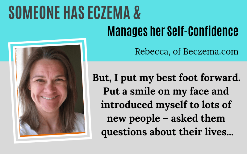 Someone has Eczema Rebecca Beczema Story on EczemaBlues