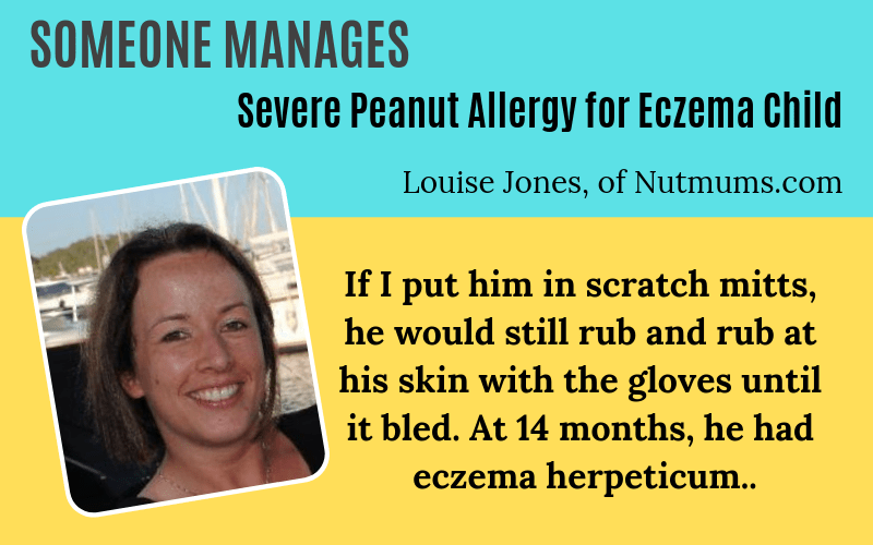 Someone has eczema Louise Jones Story on EczemaBlues Peanut Allergy