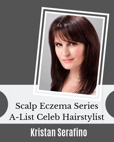 Scalp Eczema Series with Kristan Serafino on EczemaBlues