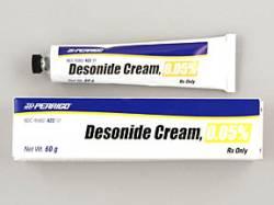 desonide | eczemaexcellence