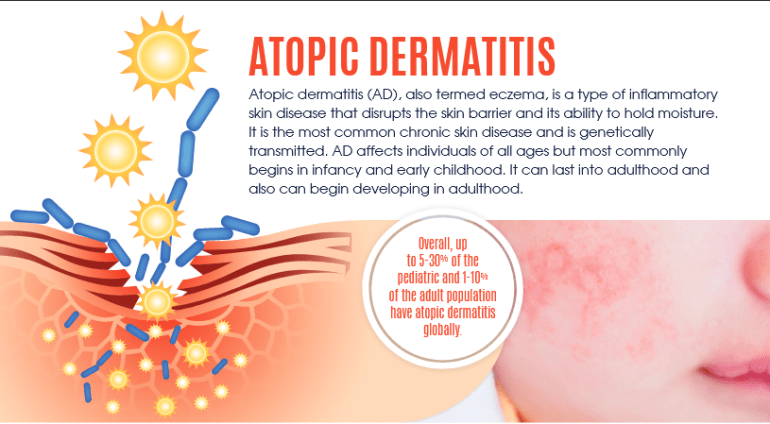what is atopic dermatitis