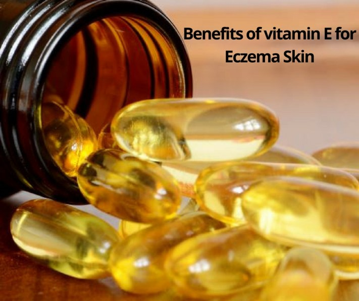 Benefits of vitamin E for Eczema Skin