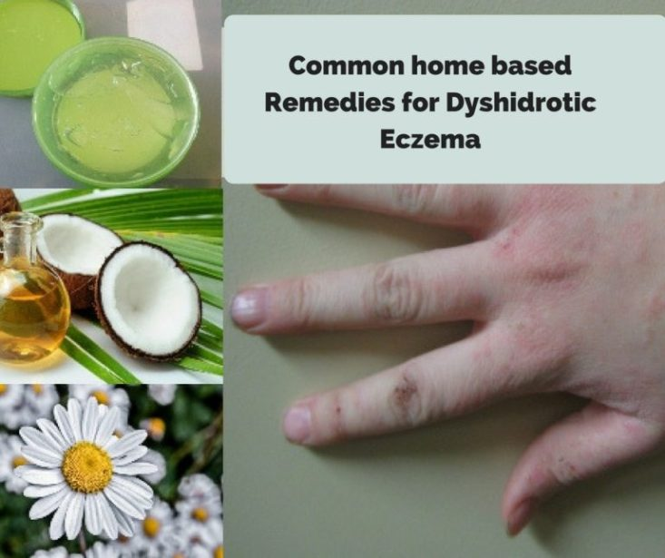 Homemade Remedy For Dyshidrotic Eczema | Flisol Home