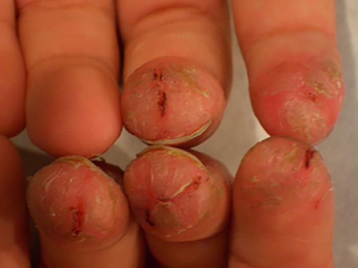 Eczema on fingertips pictures