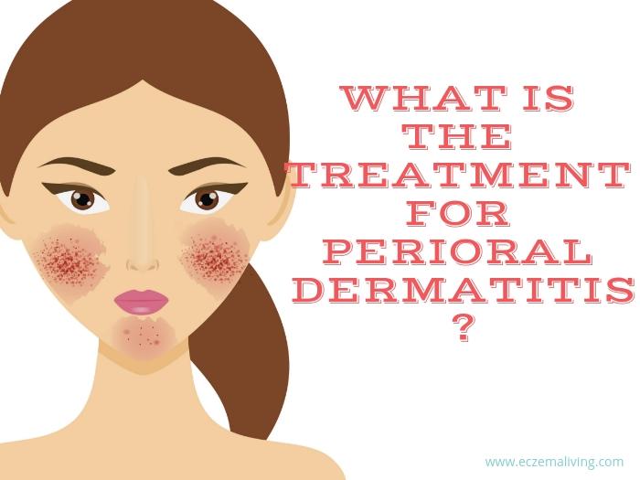Treatment Perioral Dermatitis