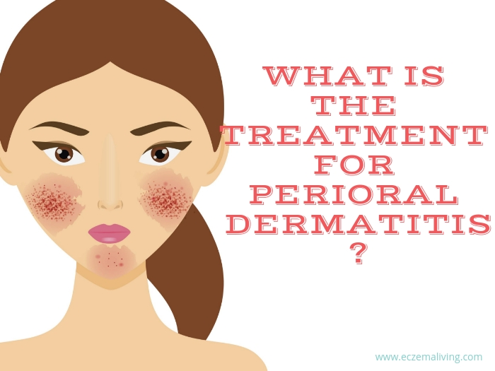 perioral dermatitis natural remedy