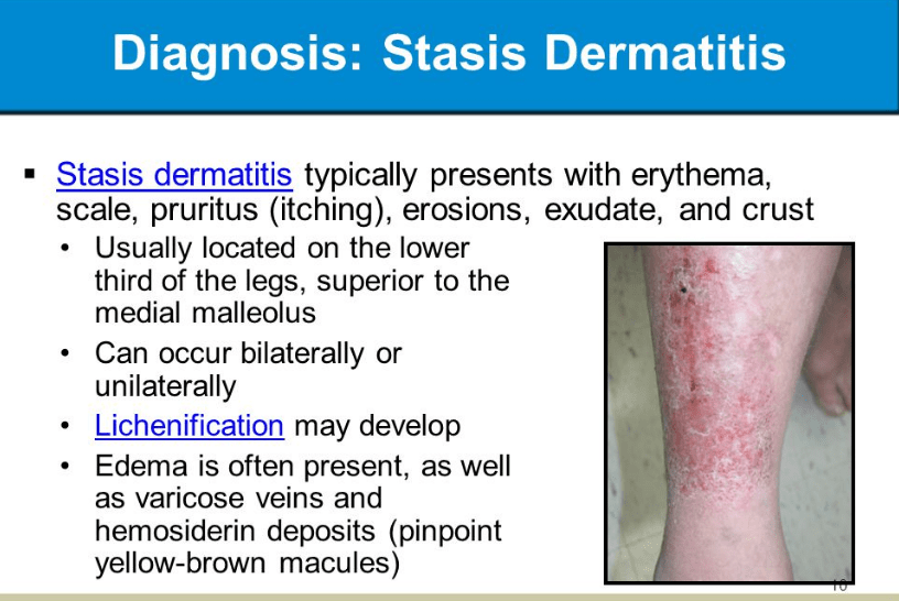How is stasis dermatitis diagnosed?