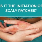 Is it a normal Itch-Scratch Cycle or Neurodermatitis?