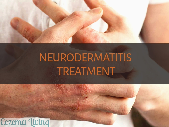 neurodermatitis treatment