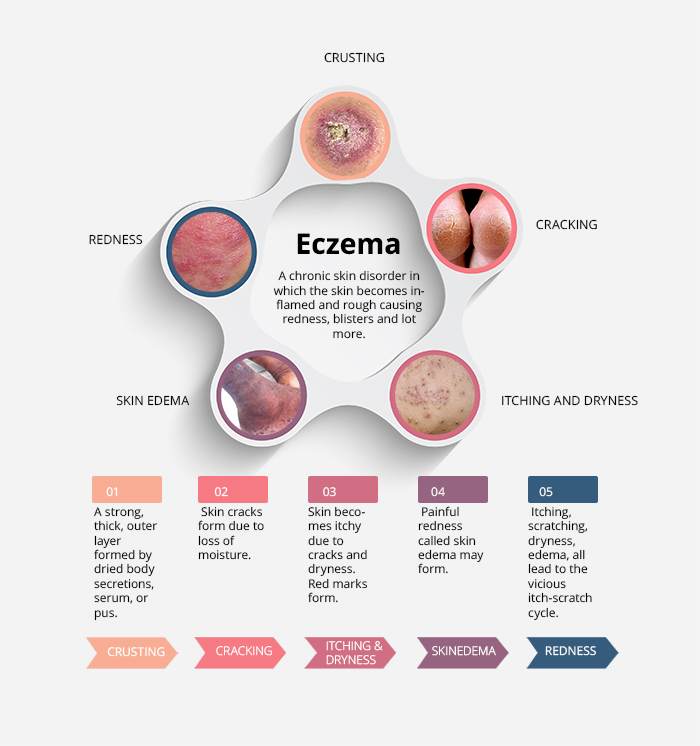 What is eczema (atopic dermatitis)