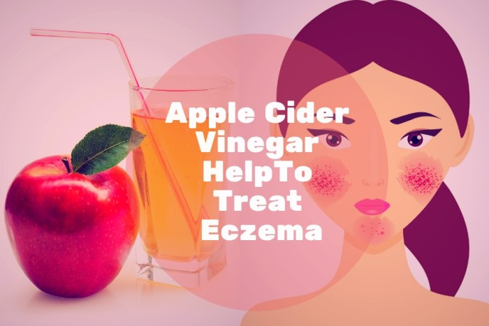 Apple Cider Vinegar for eczema treatment