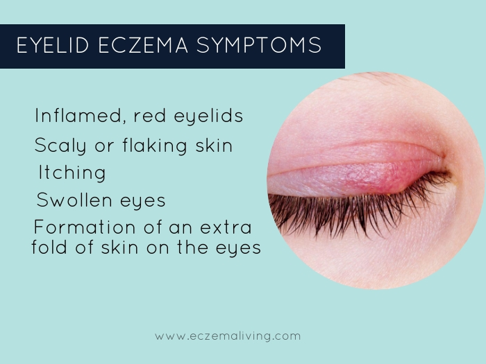 Do You Have These Eyelid Eczema Symptoms