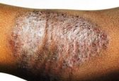 weeping eczema skin