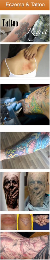 effect of tattoos on eczema - get a tattoo with eczema