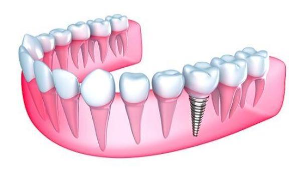 Зубной имплант в десне