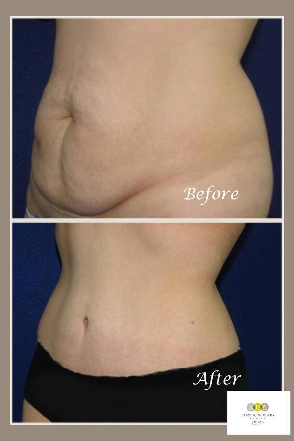 Drain Removal After Tummy Tuck  Doctor insights on HealthTap
