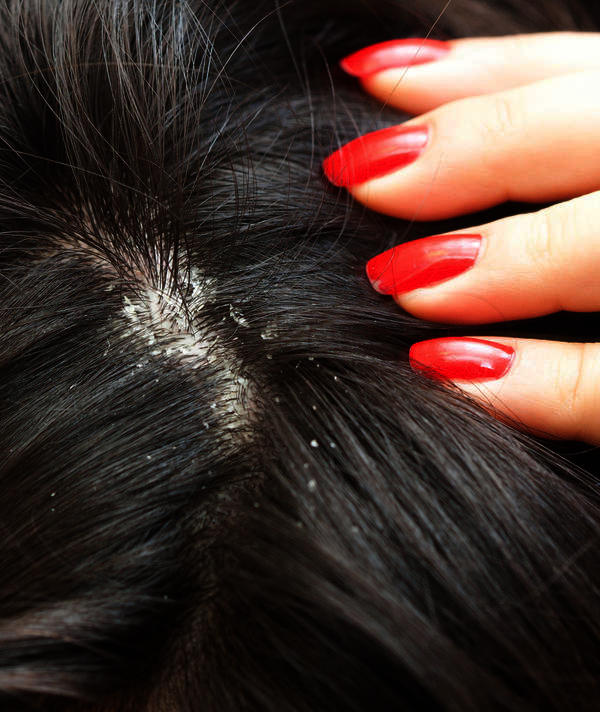 How To Get Rid Of Dandruff Without Washing Hair Things
