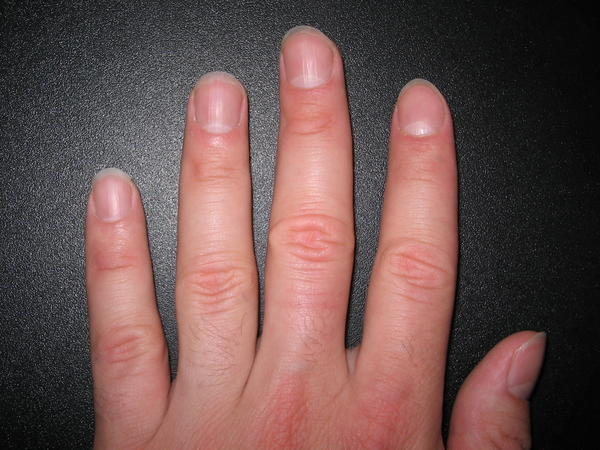 What causes ridges and bumps on fingernails Answers on