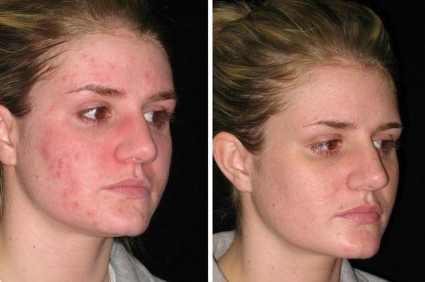Doxycycline Acne Good