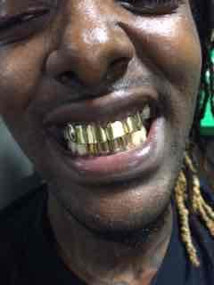 Where Can I Get Permanent Gold Teeth : where, permanent, teeth, Teeth, Prices, Savannah, TeethWalls
