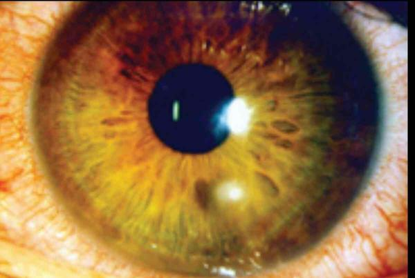 Have Redness In Right Eye Bottom Irritated Near Construction Debris There A Tiny White