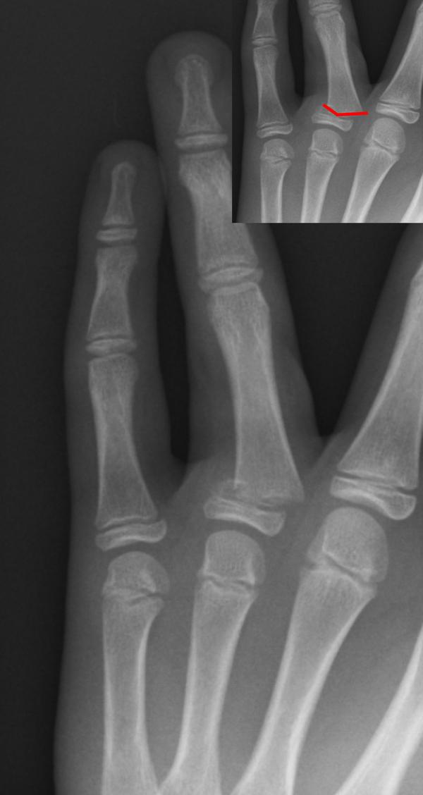How Do You Heal Jammed Finger