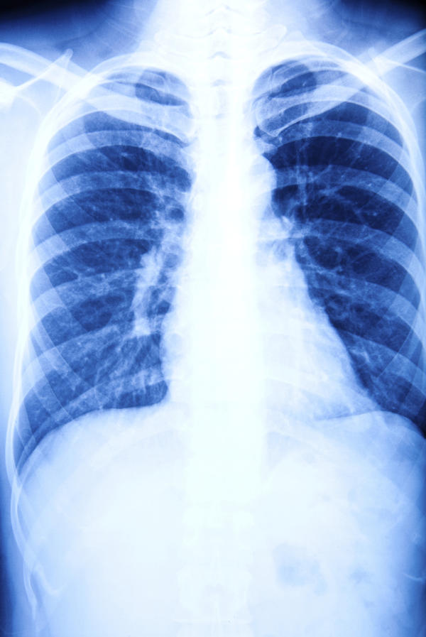 Permanent lung damage from pneumonia  Answers on HealthTap