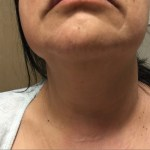 Huge save in a patient with neck swelling
