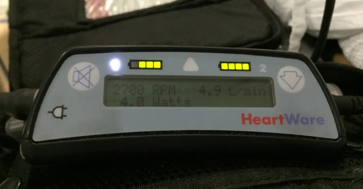 HeartWare LVAD controller. Displays battery life, impeller RPM, cardiac output & power usage. Alarms are also displayed here