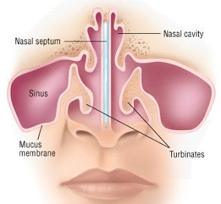 Deviations from the nasal septum