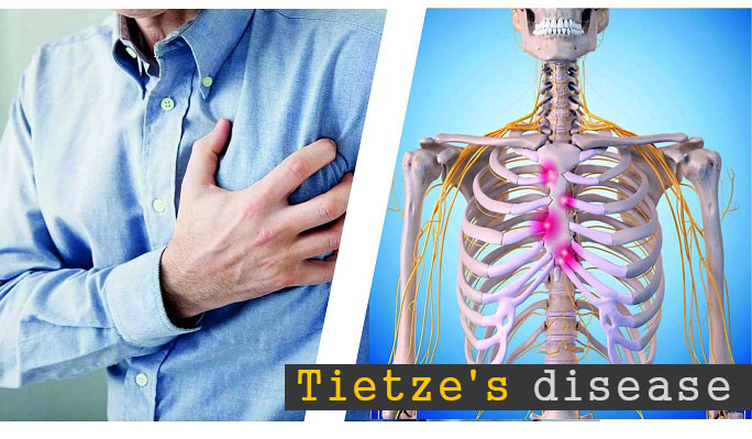 Tietze's disease Symptoms and treatments