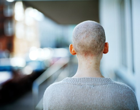 Back of my head after hair shaved off, Eastbourne, England.