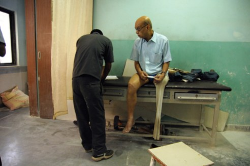 People who have lost their legs in an accident, and are undergoing treatment, come to this hospital often for routine check-ups.