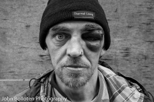 This man had been punched in the eye during an argument. Those affected with drug dependence, lack of housing and alcohol misuse live a precarious existence that none would freely choose.