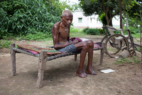 Puluria Leprosy Community, Purulia, India, Aug 2014
