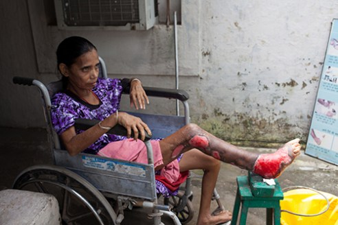 Champa Hospital, Champa, India, Aug 2014