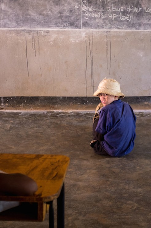 An albino girl is forced to sit close to the blackboard because of her poor eyesight. Malawians with albinism are at a huge risk of being abducted and killed, as their body parts are sold for witchcraft.