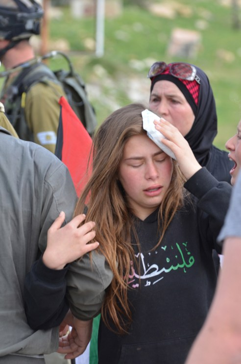 Nabi-Saleh girl: This young girl was struck in the head by a member of the Israeli Defense Force during an altercation at the regular protest in Nabi-Saleh, West Bank. A friend of hers was being arrested and as she tried to intervene she was struck in the head.