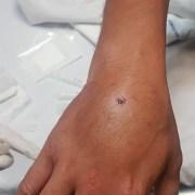 Tres días hospitalizado deberá estar el reportero gráfico que sufrió fractura expuesta grave en su mano, por impacto de proyectil de plomo lanzado por militares