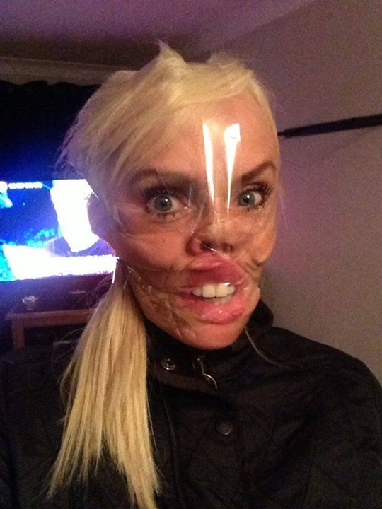 The Latest Internet Trend In The UK Scotch Tape Selfies